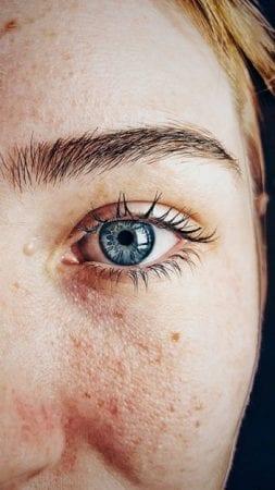 Resserrer les pores de la peau